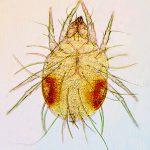 Indoor dermatitis due to Aeroglyphus robustus