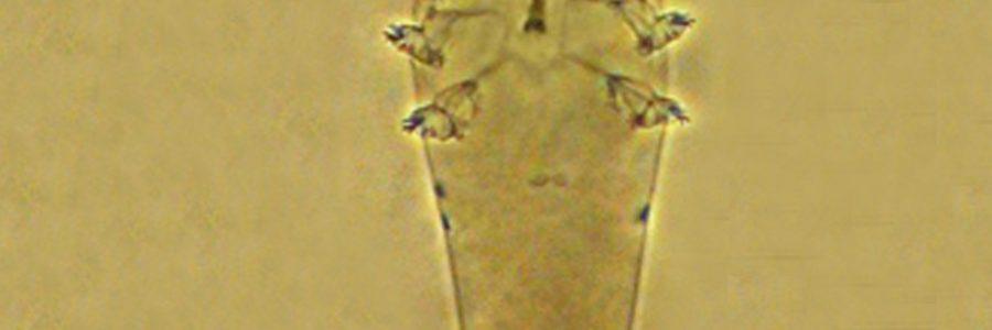 Un acaro parassita del complesso pilosebaceo della cute del capo dell'uomo
